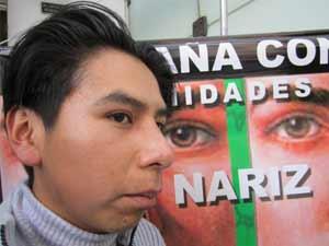 Jovem Juan Carlos Calamar depois da cirurgia no nariz