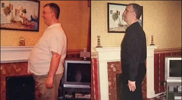 O britânico Tim Daily antes e depois da cirurgia.