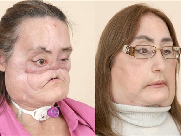 Connie Culp, antes e meses depois da cirurgia que reconstruiu sua face.