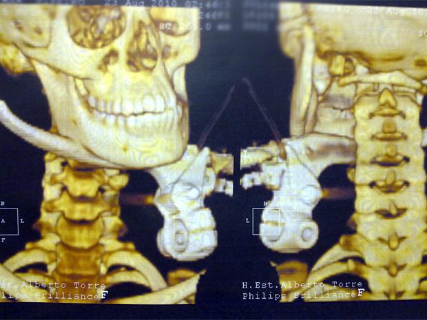 Imagem mostra pescoço da menina perfurado pelo manete de uma motocicleta