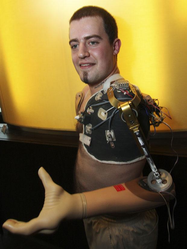 Controle de funções dos membros robóticos era realizado por impulsos cerebrais