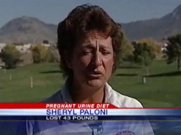 Sheryl Paloni alega que perdeu 19,5 quilos com o tratamento.