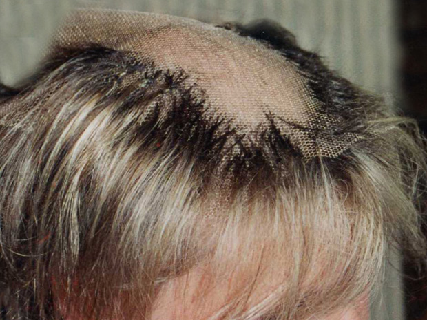 Rede protege cabelo de paciente.