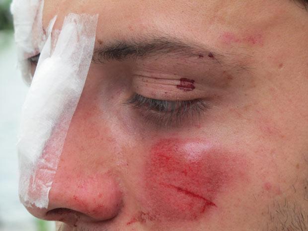 """""""Ele me chamou. Quando virei, ele já me atacou no rosto com a lâmpada"""", disse Luis"""