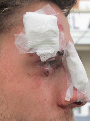 Estudante foi agredido com duas lâmpadas fluorescentes