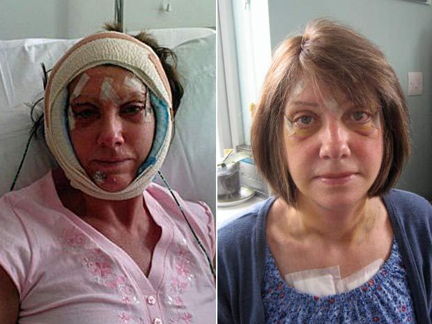 Diane Reeve (à esquerda) e Christine Martin ainda com os curativos da intervenção cirúrgica.