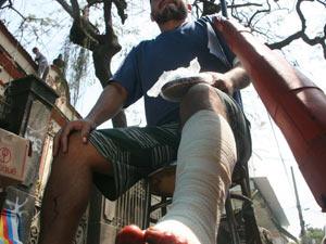 O servente José Pereira foi atingido no tornozelo durante ação policial