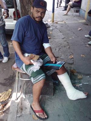 Servente José Pedreira, de 33 anos, foi atingido no tornozelo
