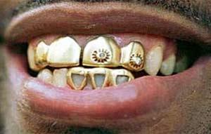 dente de ouro