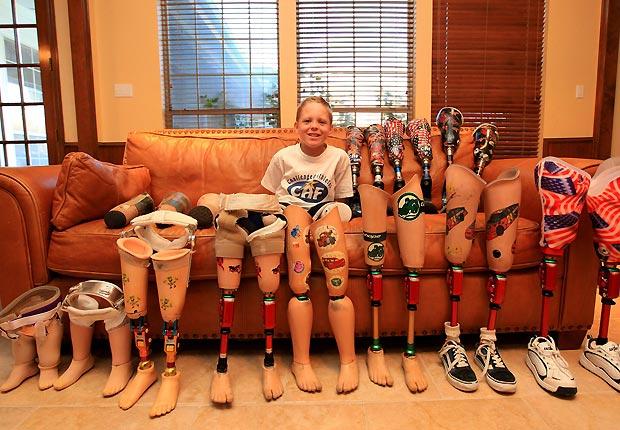 Cody McCasland jmostra sua 'coleção' de próteses.