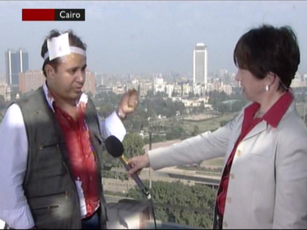 Repórter da BBC El Sawey conta como foram as agressões que sofreu da polícia egípcia.