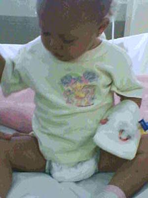 Menina de 1 ano teve parte do dedo cortado durante a retirada de uma bandagem