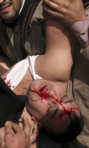 Ferido, partidário de Mubarak é socorrido por oposicionistas nesta quinta (3) na Praça Tahrir (Foto: AP)