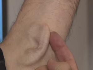 Implante orelha braço 1 (Foto: BBC)