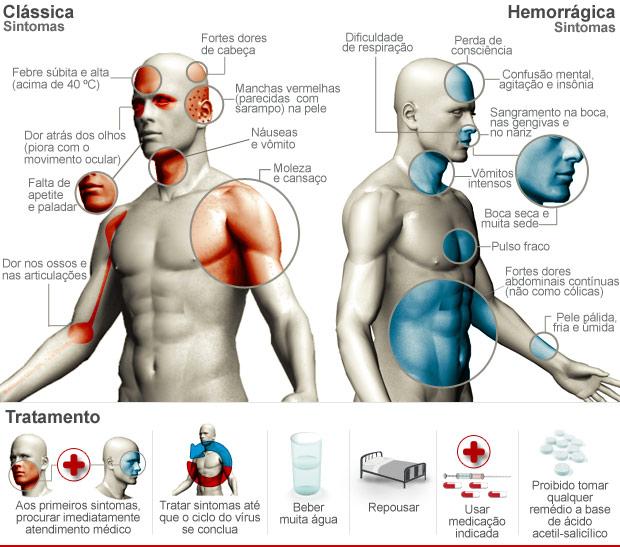 Tabela de sintomas da dengue (Foto: Arte/G1)