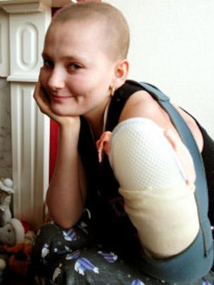 Cirurgia retirou 80% do tumor do braço esquerdo de Donna Shaw, de 17 anos (Foto: PA / via BBC)