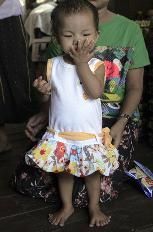 A birmanesa Lei Yadi Min vive com seis dedos em cada mão e sete em cada pé na cidade South Okkalarpa, nos arredores de Yangon, em Mianmar. A asiática nasceu em 18 de outubro de 2009. Ela é portadora de polidactilia, uma alteração nos genes que leva a pessoa a ter mais dedos do que o normal. A polidactilia é hereditária e não é um problema causado por fatores externos ao corpo.  (Foto: Khin Maung Win / AP Photo)