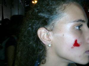Estudante ficou ferida durante protesto em frente à Prefeitura de São Paulo, nesta quinta-feira (17) (Foto: Marcelo Mora/G1)