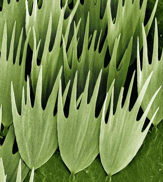Beleza ciência 11 (Foto: Kevin Mackenzie / Wellcome Images)