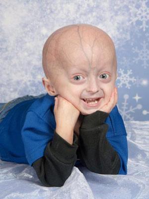 Progéria envelhecimento estudo 1 (Foto: Progeria Research Foundation / cortesia)
