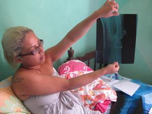Jovem mostra pino colocado em joelho que, segundo ela, era bom (Foto: Letícia Macedo/ G1)