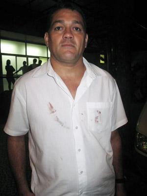 Camisa de Ulisses guarda as manchas de sangue do acidente (Foto: Tássia Thum/G1)