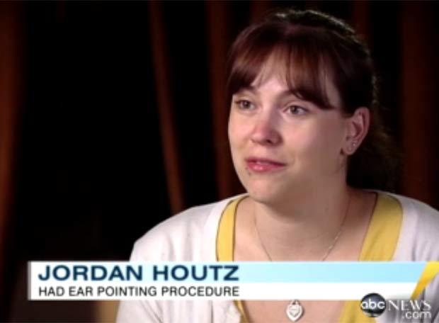 Jordan Houtz fez cirurgia para ficar com orelhas de elfo. (Foto: Reprodução/ABC News)