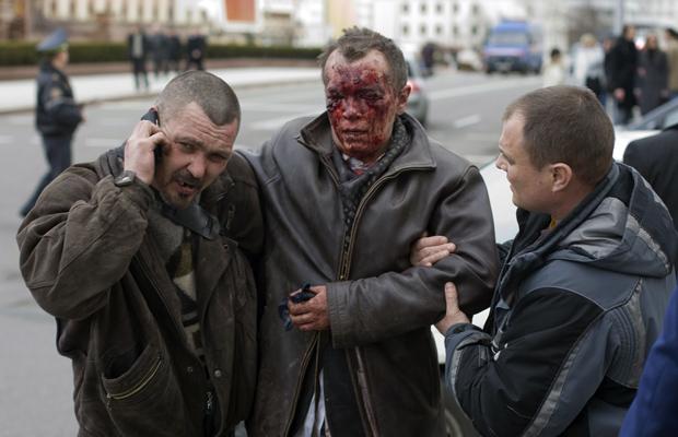 Ferido é socorrido do lado de fora de estação atingida por explosão em Minsk, capital de Belarus, nesta segunda-feira (11) (Foto: Reuters)