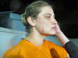 Fernanda Gritz com corte no rosto (Foto: Marcelo Mora/G1)