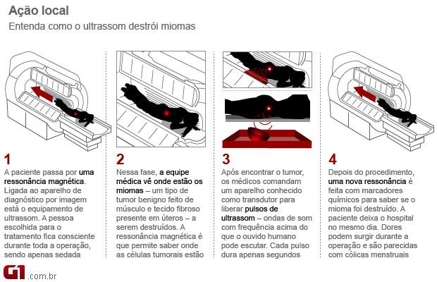 Infográfico MRgFUS 1 (Foto: Arte / G1)