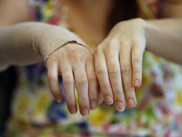 A paciente Emily Fennell mostra a mão depois do transplante recebido com sucesso (Foto: Ann Johansson / UCLA Health System / Divulgação / via Reuters)