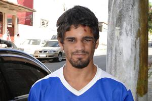 Pablo nesta segunda-feira (25) com as marcas da queda (Foto: Pedro Triginelli / G1)
