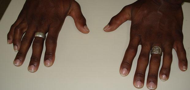 Suspeito foi identificado por ter doze dedos nas mãos (Foto: Divulgação/Polícia Civil de Santa Catarina)