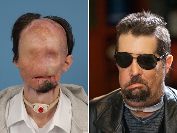 Dallas Wiens antes (à esquerda) e nesta segunda-feira (9), em Boston, após a cirurgia (Foto: AP)