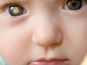 Retinoblastoma 1 (Foto: BBC)