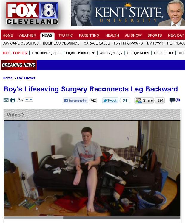 Em reportagem na TV americana, Dugan Smith, de 13 anos, mostra resultado da cirurgia que permitiu que sua perna direita não fosse amputada (Foto: Reprodução/FOX)