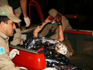 Vítima de explosão de gás de cozinha morre na Santa Casa de Campo Grande (Foto: PC de Souza/Edição de Notícias)