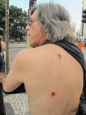 atingido marcha maconha tiros borracha (Foto: Letícia Macedo/G1)
