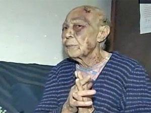 Idosa de 89 anos agredida no interior de SP (Foto: Reprodução/TV Tem)
