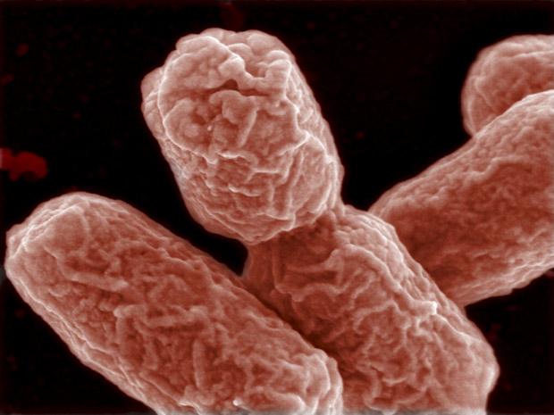 Exemplares da bactéria EHEC, vistos com microscopia eletrônica. (Foto: Manfred Rohde / HZI / Reuters)