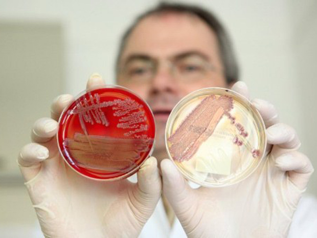 Helmut Fickenscher, diretor da Clínica Universitária de  Schleswig-Holstein, em Kiel, Alemanha, mostra placas com colônias da  bactéria 'E. coli' (Foto: Bodo Marks / AFP Photo)