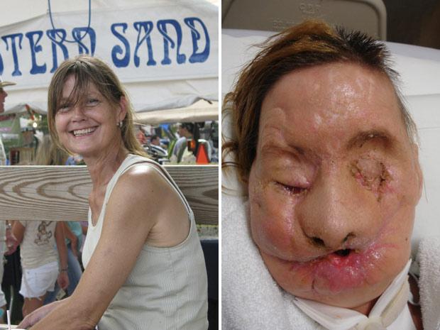 Charla Nash antes do acidente (à esquerda) e minutos antes da operação nos EUA. (Foto: Reuters)
