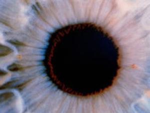 Para médicos, foi a 1ª vez que uma retina descolada a muito tempo foi corrigida. (Foto: SLP / via BBC)