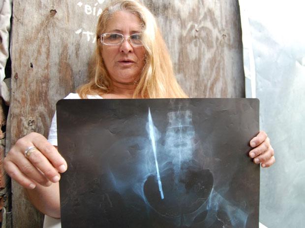 Sueli mostra radiografia que mostra objeto na barriga (Foto: Hélio Torchi/AE)