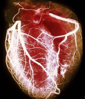 Coração SLP 1 (Foto: SLP / BBC)