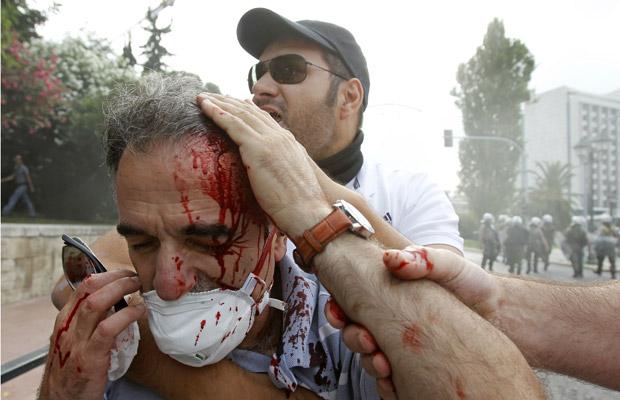 Ferido é socorrido durante confrontos de rua nesta quarta-feira (29) em Atenas (Foto: AP)