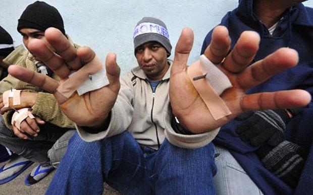 Cerca de 20 presidiários paraguaios da prisão de Tacumbu, na capital Assunção, começaram nesta terça-feira (5) uma greve de fome para chamar a atenção da mídia sobre seus julgamentos. Alguns deles chegaram a costurar as próprias bocas e a perfurar as mãos com longos pregos. (Foto: Norberto Duarte/AFP)