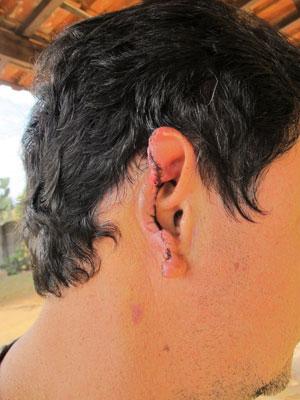 orelha (Foto: Juliana Cardilli/G1)
