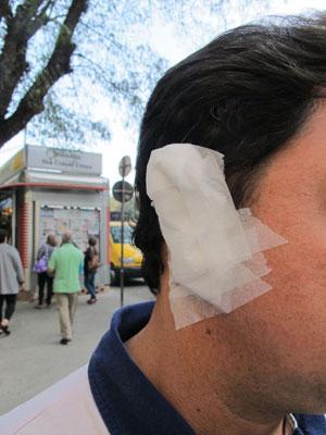 orelha curativo (Foto: Juliana Cardilli/G1)