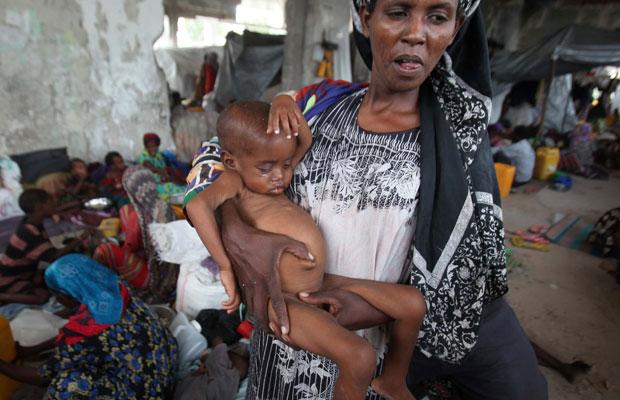 Mulher carrega filho desnutrido em acampamento para deslocados internos em Mogadishu, capital da Somália (Foto: Ismail Taxta/Reuters)